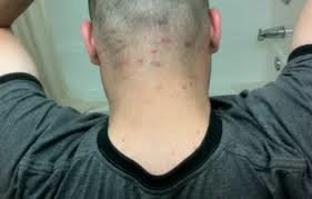 bumps on back of head